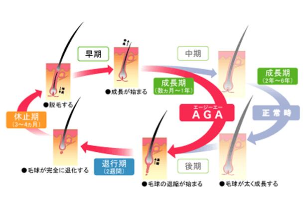 頭皮のヘアサイクルとAGAの仕組みについての図